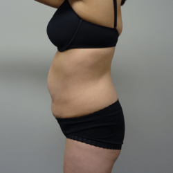 Manhattan abdominoplasty before 5